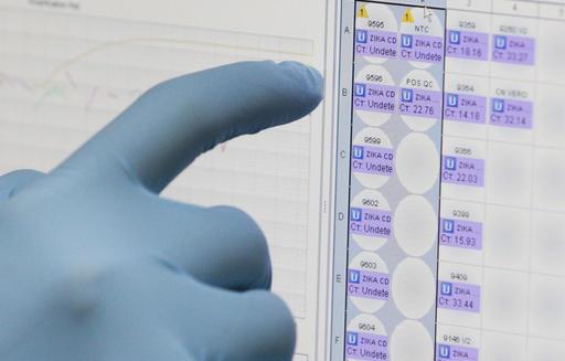 Zika Virus Blood Test_AP_341995
