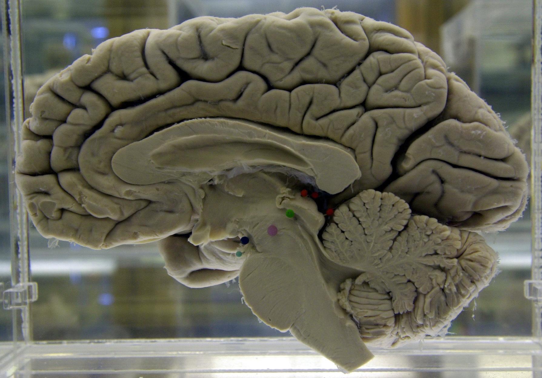 Brain Injuries Dementia_1523466414488