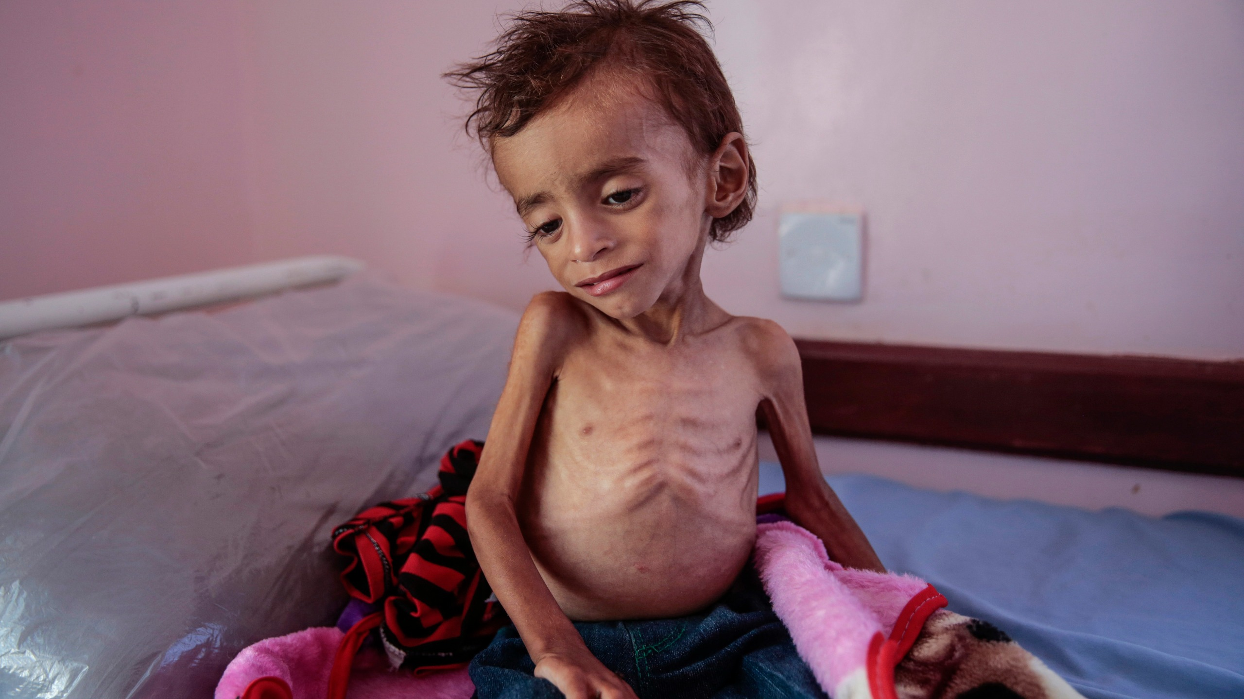 APTOPIX Yemen Displaced into Hunger Photo Essay_1542831354997