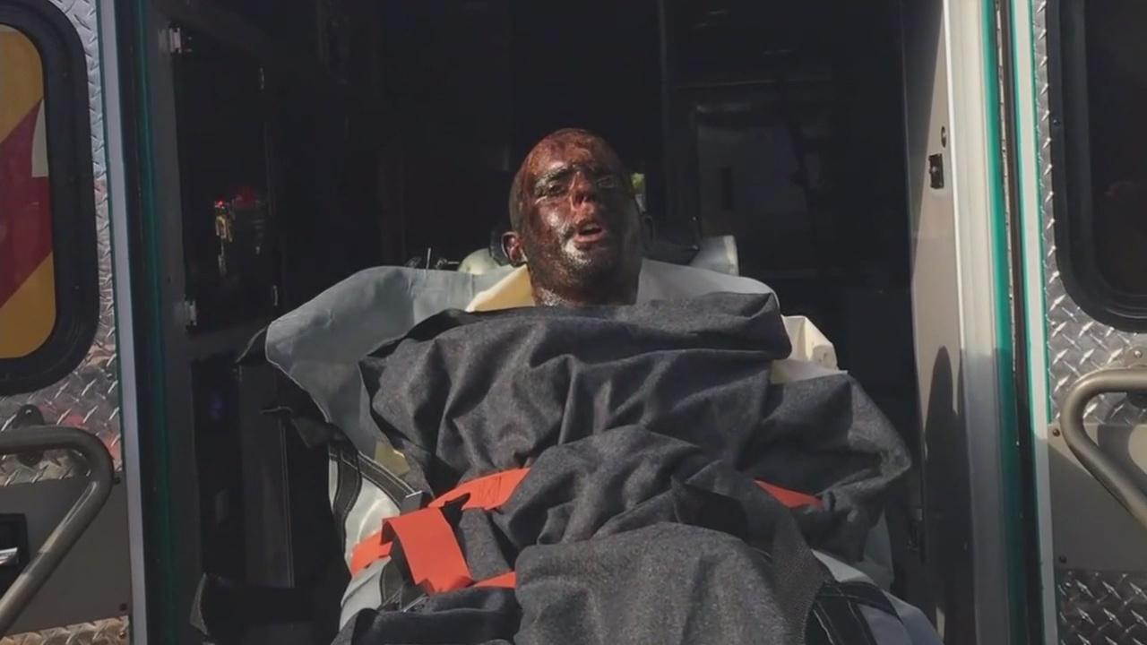 Crews rescue man stuck in grease vent of empty restaurant_1544745636727.jpg.jpg