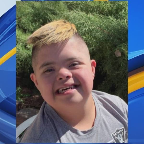 Rio Grande Down Syndrome Network's Buddy Walk Uniting People for a Common Cause